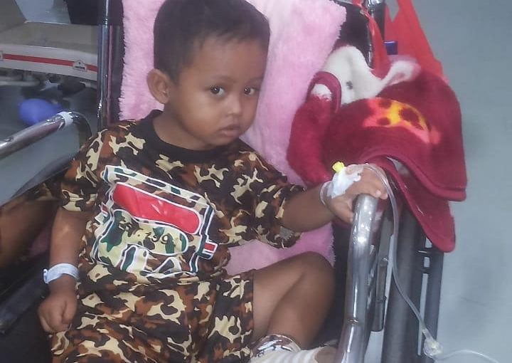Butuh Bantuan, Bocah Empat Tahun di Lampung Timur Idap Tumor Otak